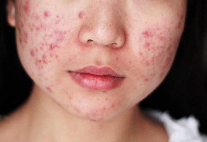 tratamiento para manchas de acne en la espalda