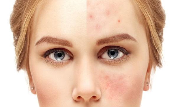 acné grado 1