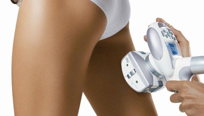 liposucción no invasiva