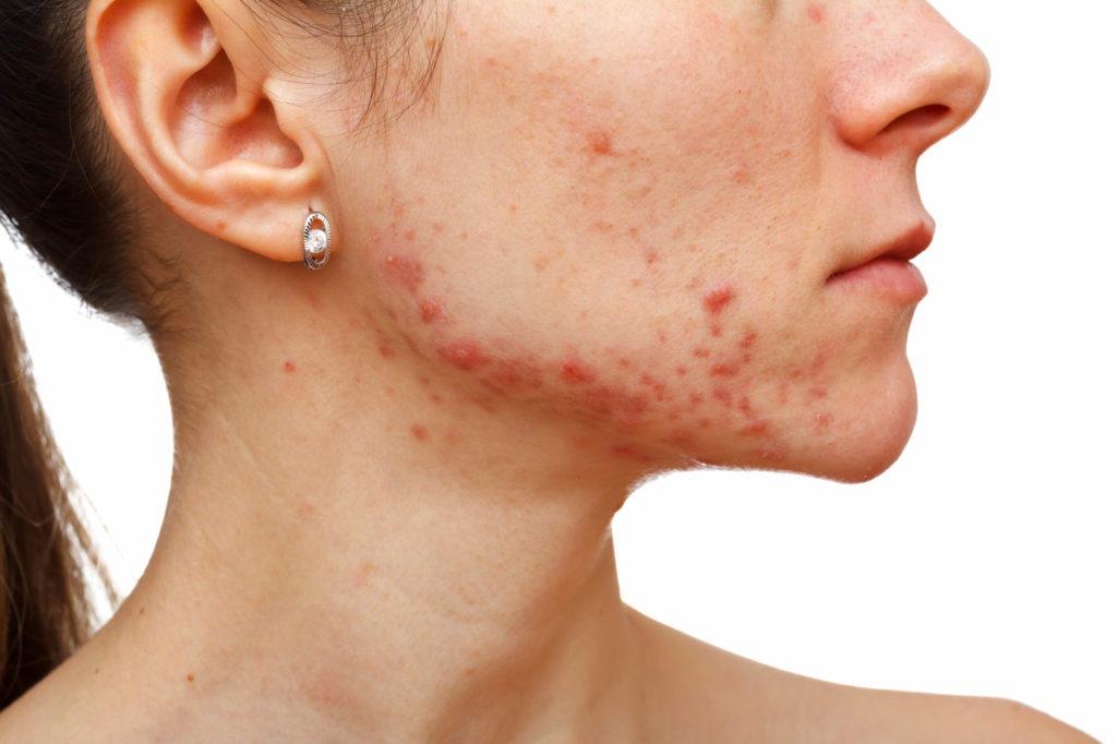 cómo eliminar cicatrices de acné profundas