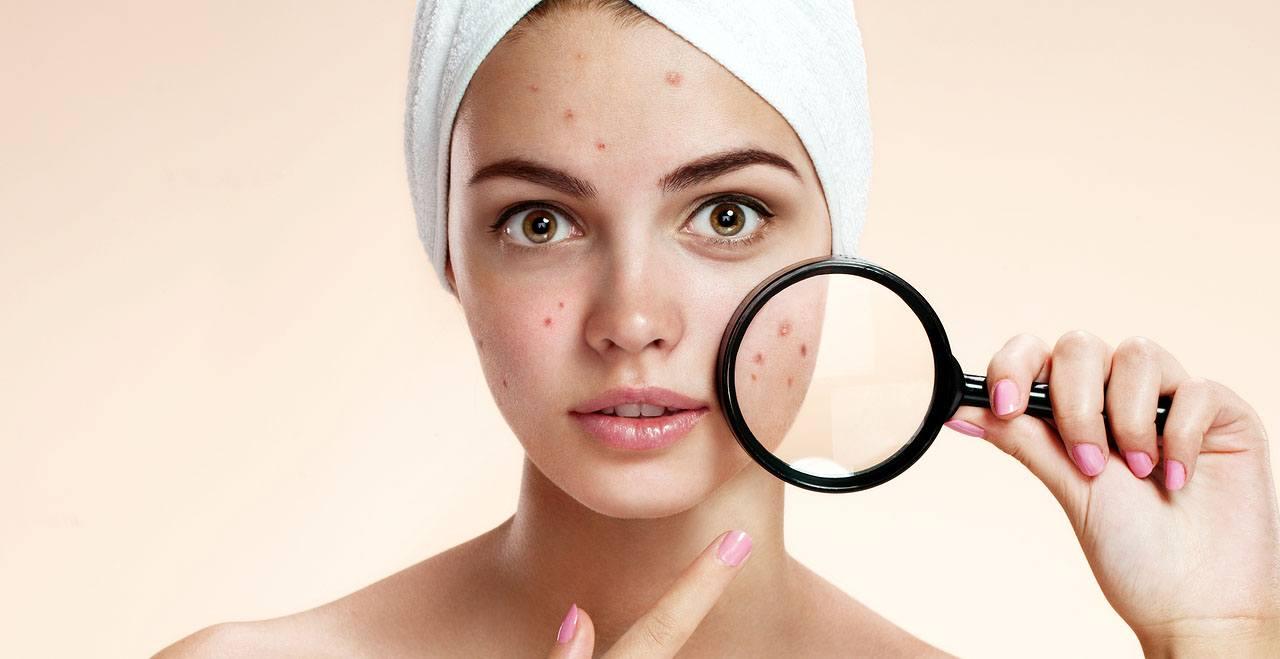 eliminar cicatrices de acné profundas