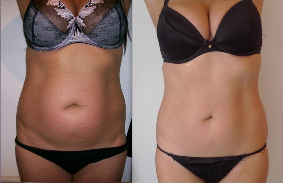 antes y después de la carboxiterapia