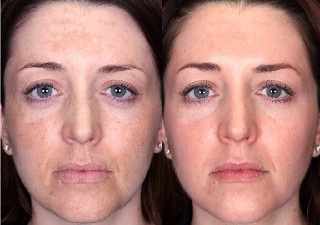 antes y después de la corriente galvánica facial