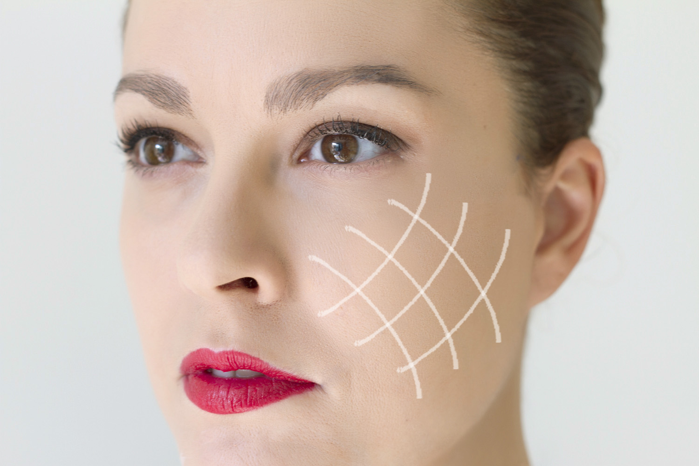 procedimiento para aplicar hilos tensores