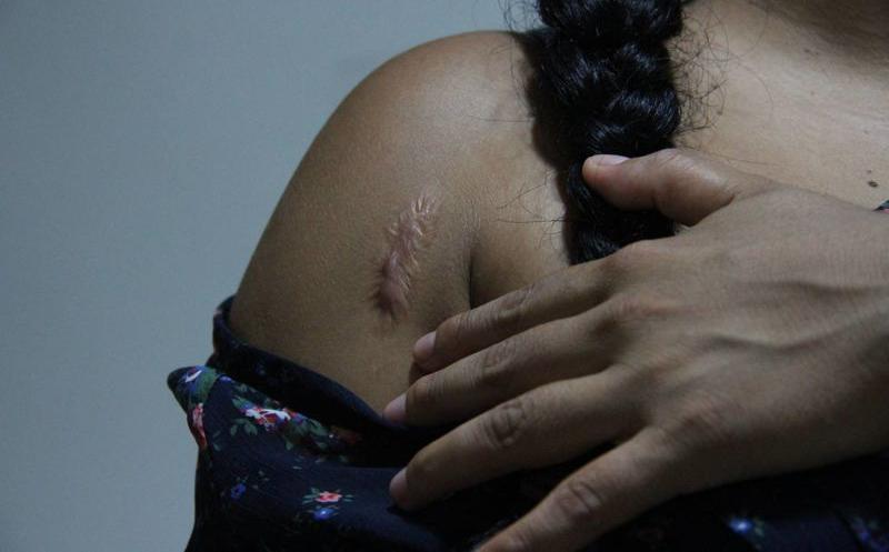 cicatrices de quemaduras