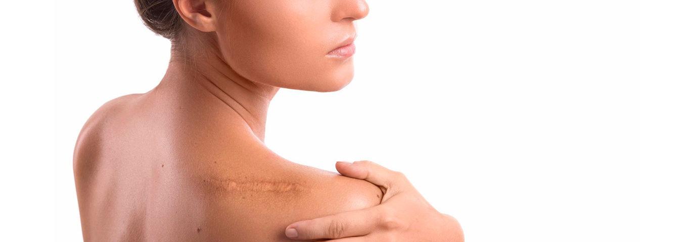 Cicatrices precio queloides para crema