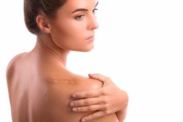 cómo eliminar cicatrices de quemaduras