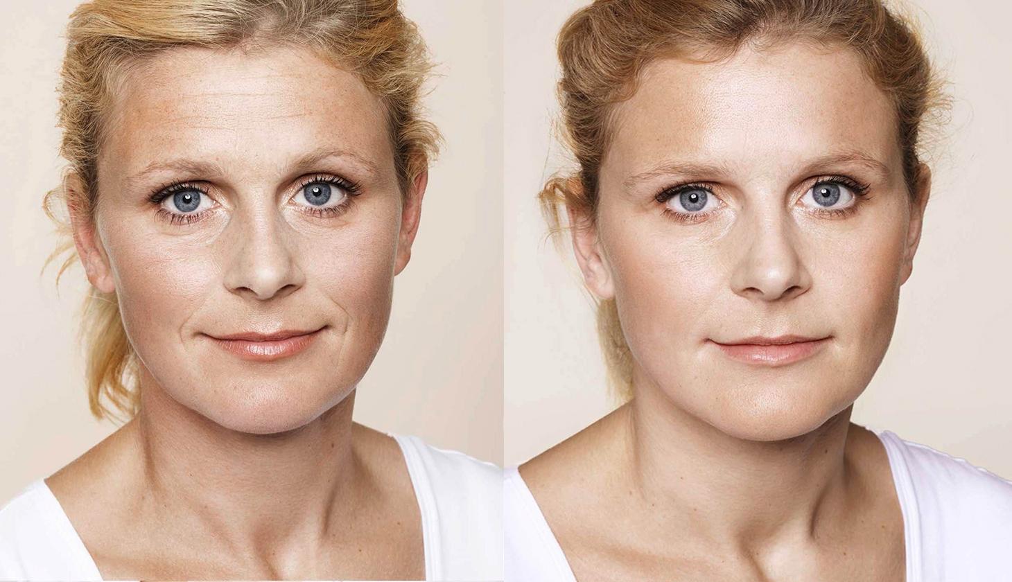 tratamiento contra fotoenvejecimiento
