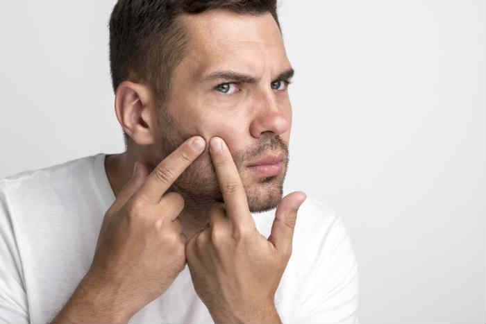 Hombre adulto con acné