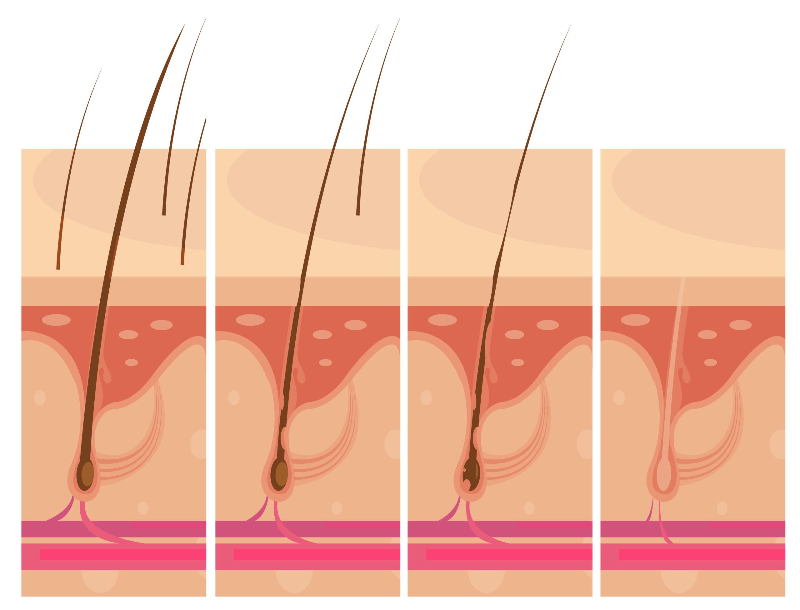 Los folículos pilosos pueden ser obstruidos por células muertas.
