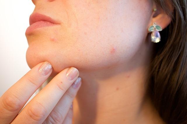 rostro sin tratar con parches anti acné
