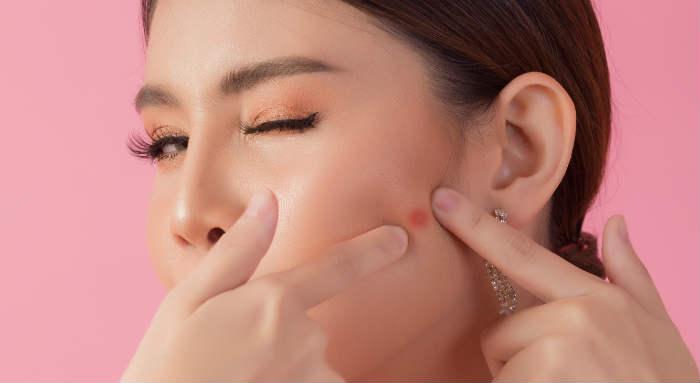 Paciente ideal para utilizar parches anti acné