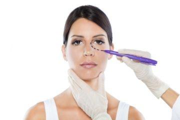 blefaroplastía o cirugía de párpados
