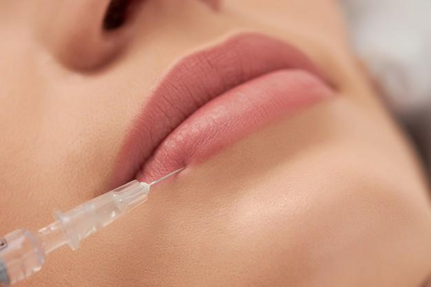 Ácido Hialurónico en Labios Beneficios