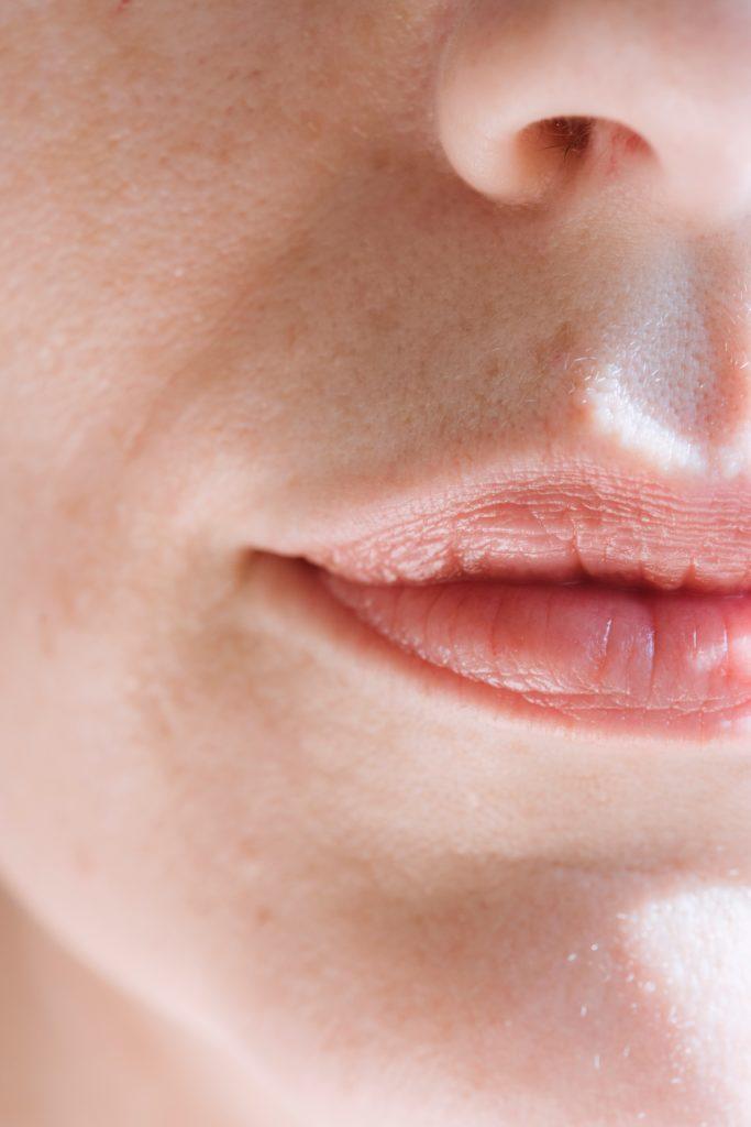 Beneficios del Ácido Hialurónico en Labios